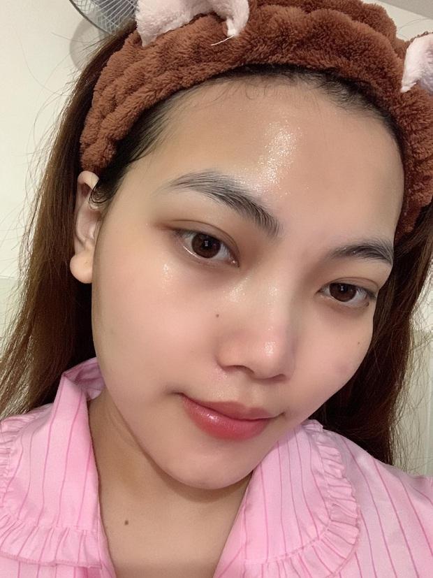 Từng nổi mụn vì skincare sai cách, cô nàng cải tổ da căng bóng nhờ loạt mặt nạ giấy chất lượng - Ảnh 2.