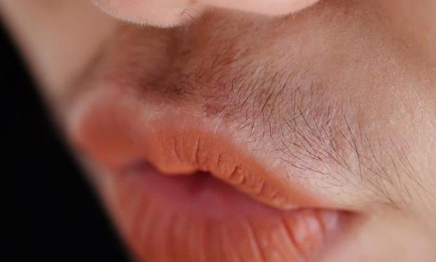 Con gái mắc bệnh phụ khoa thường có 3 đặc điểm khác thường xung quanh vùng miệng, kiểm tra xem bạn có nằm trong số đó - Ảnh 3.