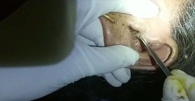 Lạnh người cảnh bác sĩ gắp 30 con giòi trong tai bệnh nhân  - Ảnh 1.