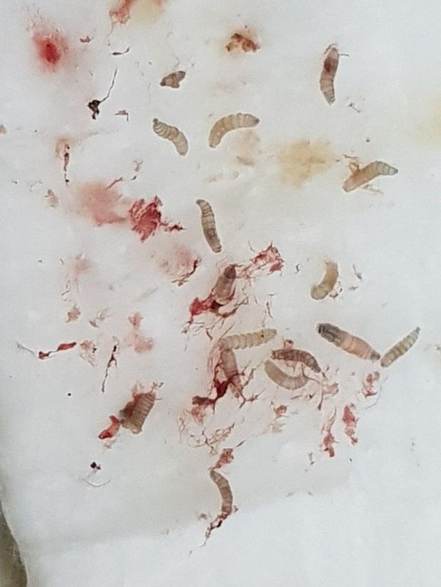 Lạnh người cảnh bác sĩ gắp 30 con giòi trong tai bệnh nhân  - Ảnh 3.