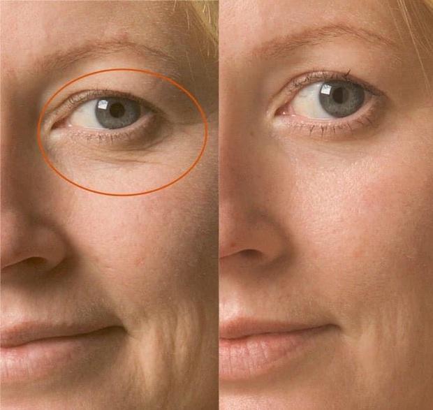 Da sạm hay thâm nám đến mấy cũng căng mịn, chỉ cần bạn chọn đúng 3 dòng retinol kiêm dưỡng ẩm vi diệu này - Ảnh 4.