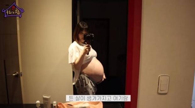 Từng bị mỉa mai, bà mẹ trẻ nhất Kbiz Yulhee khiến dư luận đổi chiều sau tâm sự đẫm nước mắt về quá trình sinh song thai đau đớn - Ảnh 3.