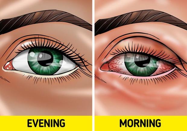Quên tẩy trang trước khi đi ngủ: có 7 vấn đề sẽ xảy đến với sức khỏe lẫn nhan sắc của bạn - Ảnh 4.