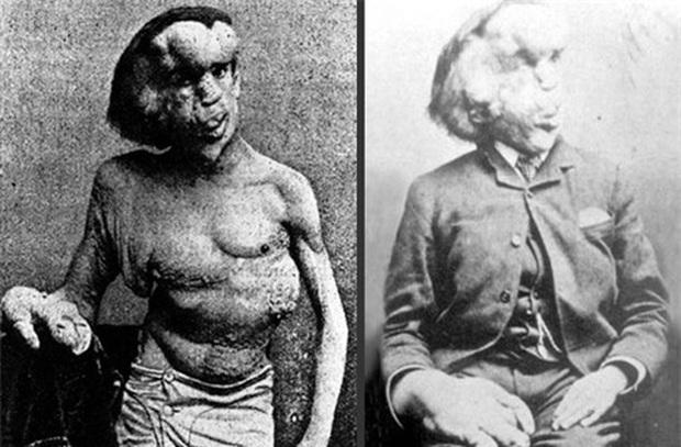 Cuộc đời đau khổ và ngắn ngủi của Người voi: Sinh ra mang vẻ ngoài khác biệt với những khối u lớn bí ẩn không lời giải đến tận ngày nay - Ảnh 2.