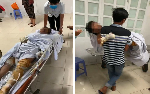 Tiếng khóc xé lòng của bé trai 3 tuổi bị bỏng nặng trong vụ đốt nhà vì mâu thuẫn: Bà ngoại ơi... cứu con - Ảnh 2.