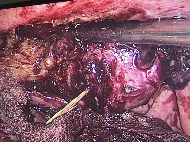 Xương cá đâm thủng ruột 10 ngày mới được lấy ra - Ảnh 1.