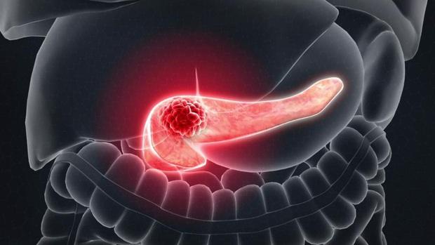 Bị đau tức vùng bụng dưới bên trái: nguyên nhân có thể là do 4 căn bệnh rình rập trong cơ thể - Ảnh 2.