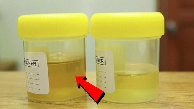Dù là nam hay nữ, nếu thấy có 4 dấu hiệu bất thường khi đi vệ sinh thì hãy cảnh giác với nguy cơ mắc ung thư gan - Ảnh 1.