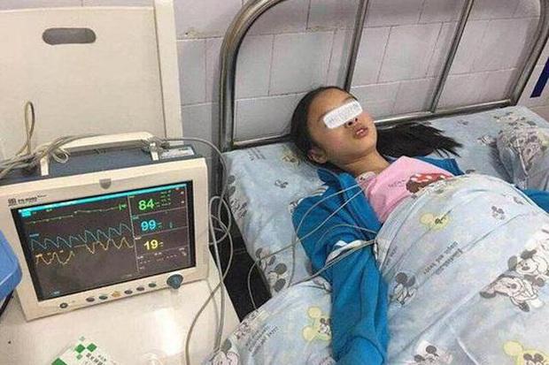 Nặn mụn trên mặt, cô gái 19 tuổi bị nhiễm trùng nội sọ, nếu không được cứu chữa kịp thời có thể nguy hiểm tính mạng - Ảnh 2.