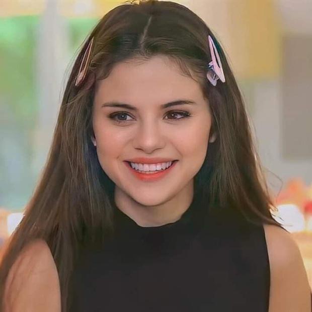 Selena Gomez gây sốt với nhan sắc lột xác, nhưng bị thánh soi bóc luôn hậu quả để lại do giảm cân quá nhanh - Ảnh 2.