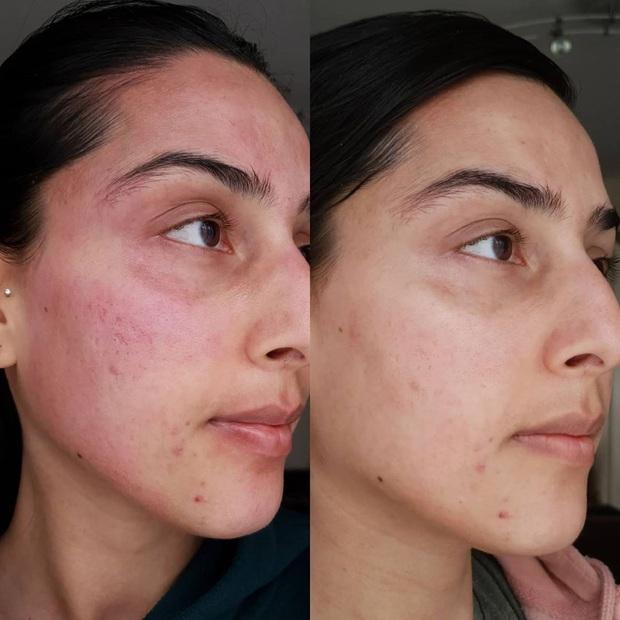 5 lọ toner AHA tẩy da chết đỉnh cao: Tái sinh làn da từ sần sùi mụn ẩn thành láng mịn, trắng sáng chỉ trong vài tuần - Ảnh 2.