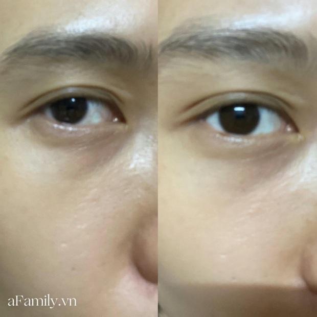 Tôi đã dùng hết lọ serum mắt của The Ordinary, bọng mắt và quầng thâm được cải thiện nhưng dưỡng ẩm thì ở mức trung bình - Ảnh 3.