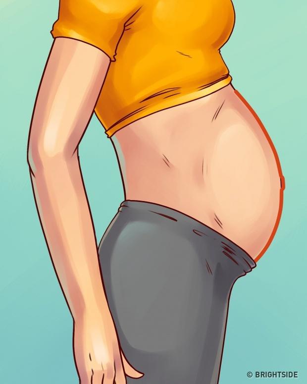 Cách trị 4 loại béo bụng điển hình, loại nào cũng cả rổ mỡ nhưng ít ai biết cách giải quyết triệt để - Ảnh 4.