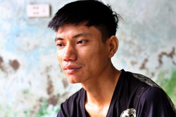 """Chàng trai cô độc không một người thân thích và nguyện vọng ở tuổi 28: """"Khi không cố được nữa, mình mong được hiến phần lành lặn trên cơ thể cho y học"""" - Ảnh 4."""