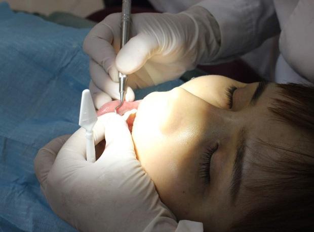 Thường xuyên bị chảy máu khi đánh răng, cô gái 26 tuổi bị viêm nha chu nặng, phải vĩnh biệt cùng lúc 11 chiếc răng - Ảnh 1.
