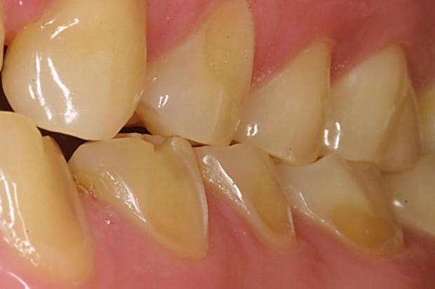 6 dấu hiệu điển hình cảnh báo nguy cơ lão hóa răng sớm mà nhiều người chẳng ngờ đến - Ảnh 1.