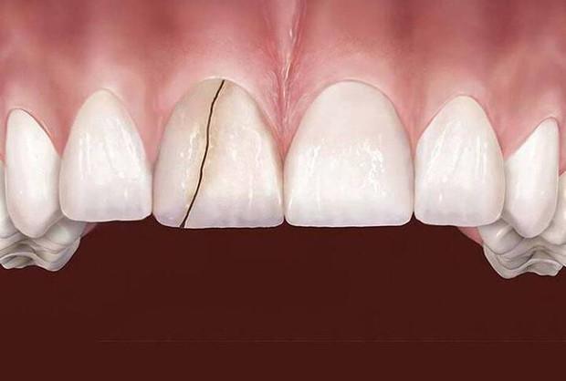 6 dấu hiệu điển hình cảnh báo nguy cơ lão hóa răng sớm mà nhiều người chẳng ngờ đến - Ảnh 4.