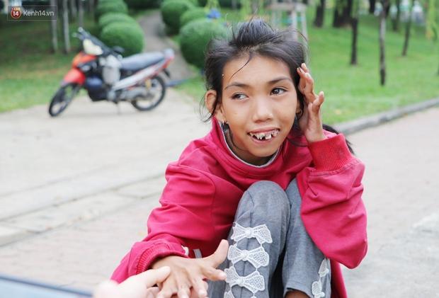 Bé gái bị teo não theo cha đi lượm ve chai ở bờ sông Sài Gòn: Ngồi chờ ba xíu, lát ba quay lại cõng con lên ghe nghen - Ảnh 3.