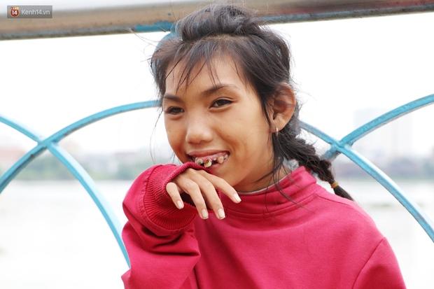 Bé gái bị teo não theo cha đi lượm ve chai ở bờ sông Sài Gòn: Ngồi chờ ba xíu, lát ba quay lại cõng con lên ghe nghen - Ảnh 1.