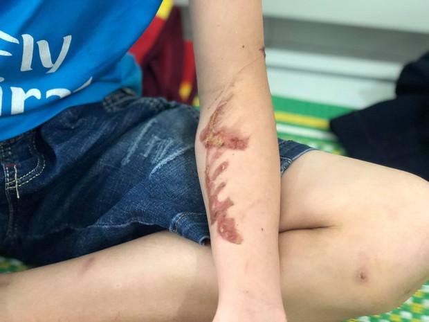 Thiếu niên 15 tuổi bàng hoàng kể lại những ngày tháng làm việc ở quán bánh xèo: Bị chủ quán dùng chày, cạo vảy cá đánh vào đầu và lưng, ăn thừa đồ ăn của khách - Ảnh 3.
