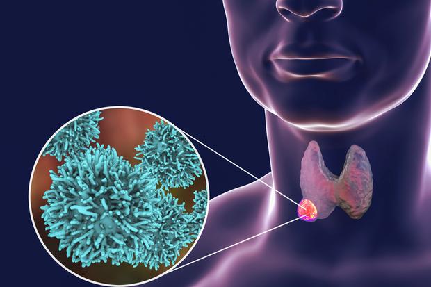 Có 1 loại ung thư đặc biệt ưa thích 5 kiểu phụ nữ, cần xét nghiệm di truyền để ngăn ngừa và phát hiện bệnh sớm - Ảnh 1.