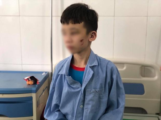 Lạnh người trước lời khai của nữ chủ quán bánh xèo bạo hành nhân viên ở Bắc Ninh: Em lấy cây cọ chà nhà vệ sinh đánh, chọc vô mắt - Ảnh 2.