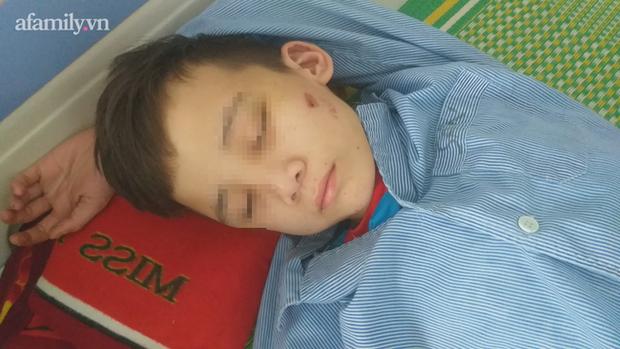 Vụ bé trai 14 tuổi bị chủ quán bánh xèo ở Bắc Ninh tra tấn: Nhà trường sẵn sàng cho cháu trở lại học - Ảnh 1.