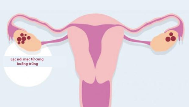 Tưởng đau bụng kinh bình thường, cô gái 25 tuổi đi khám mới phát hiện khối u nang 10cm trong buồng trứng - Ảnh 2.
