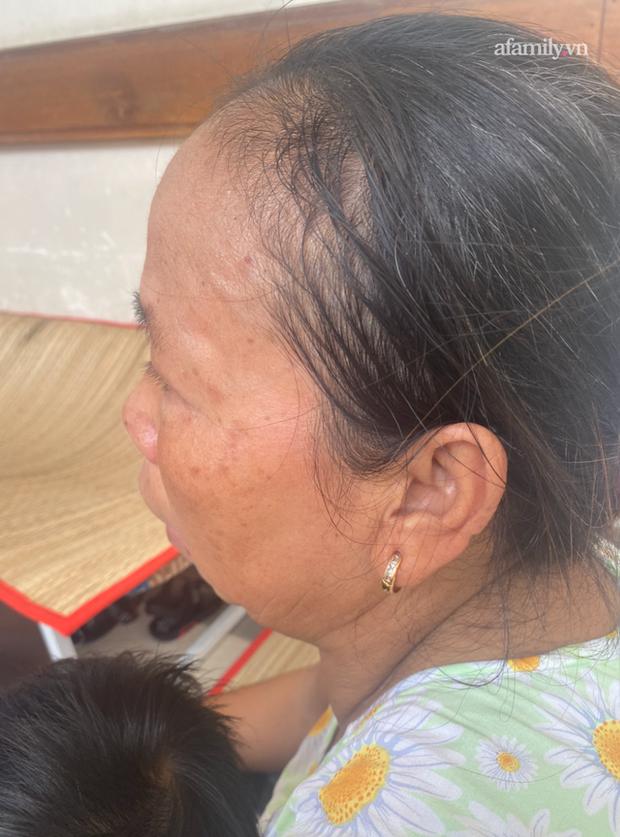 Đau xót lời kể bà ngoại bé gái 3 tuổi nghi bị mẹ đẻ bạo hành chấn thương sọ não: Bị đánh vì để phân dính vào dép? - Ảnh 9.