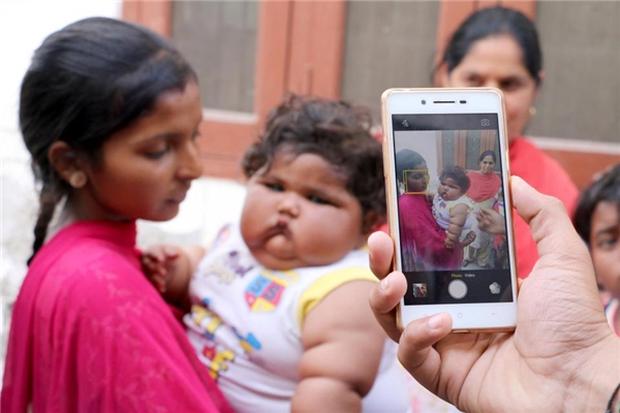 Bé gái béo nhất thế giới 8 tháng tuổi đã nặng gần 20kg, từng khiến truyền thông thế giới phải ngỡ ngàng 3 năm trước giờ ra sao? - Ảnh 5.