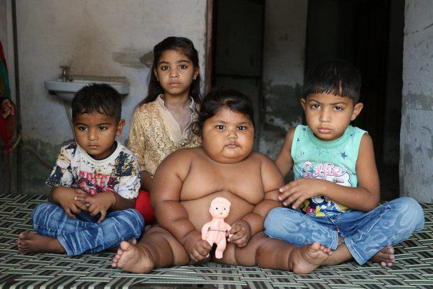 Bé gái béo nhất thế giới 8 tháng tuổi đã nặng gần 20kg, từng khiến truyền thông thế giới phải ngỡ ngàng 3 năm trước giờ ra sao? - Ảnh 11.