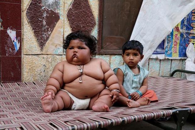 Bé gái béo nhất thế giới 8 tháng tuổi đã nặng gần 20kg, từng khiến truyền thông thế giới phải ngỡ ngàng 3 năm trước giờ ra sao? - Ảnh 3.