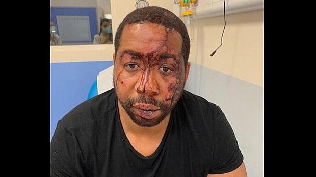 Pháp bắt giữ 4 cảnh sát đánh đập người da màu - Ảnh 2.