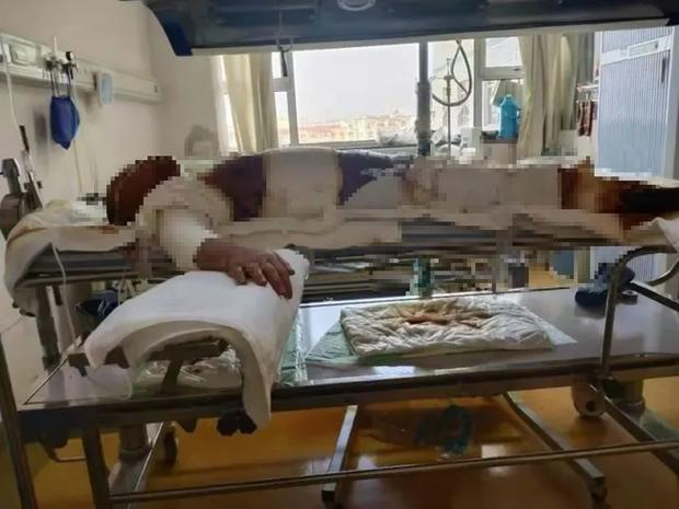 Bất ngờ nghe tin dữ từ quê nhà, con trai chạy về gục ngã trước hình ảnh mẹ trong bệnh viện, hé lộ tội ác man rợ của cha dượng - Ảnh 3.