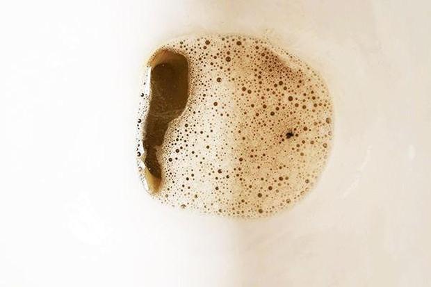 Nếu có 5 biểu hiện lạ khi đi vệ sinh thì nên chú ý kiểm tra gan ngay vì có thể cơ quan này đang gặp vấn đề - Ảnh 2.