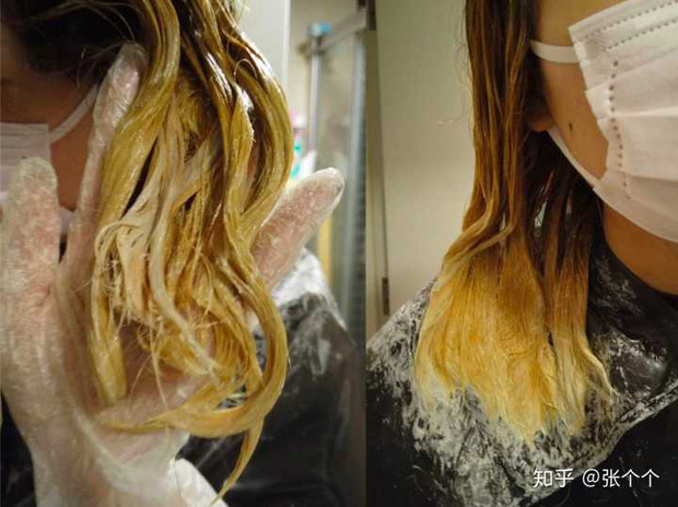 Nhuộm tóc liên tục 4 lần/tuần trong thời gian dài, một phụ nữ bị viêm phổi kẽ và phải dùng thuốc suốt đời - Ảnh 4.