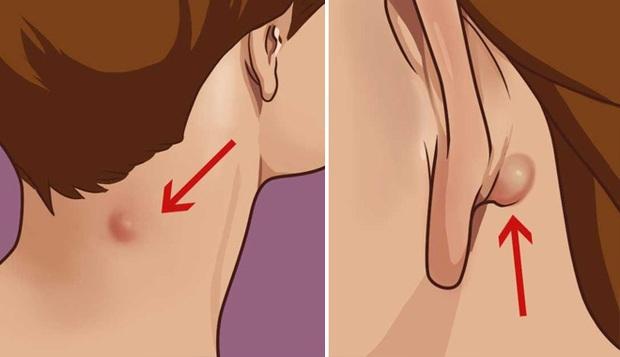 Cảnh giác với 4 dấu hiệu trên cổ cho thấy tế bào ung thư đã thức giấc - Ảnh 1.