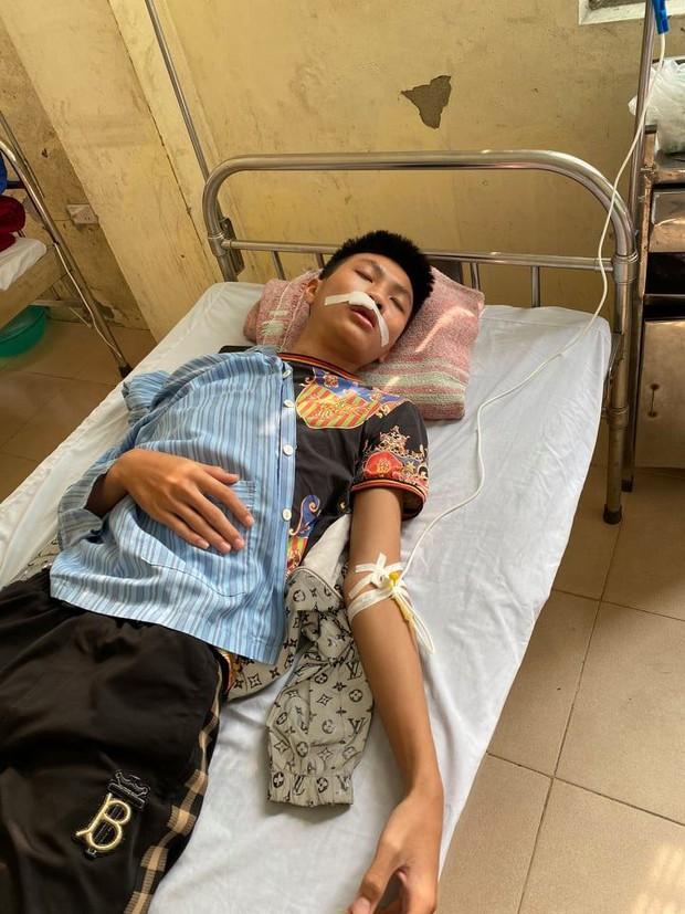Hà Nội: Xác minh vụ việc nam sinh bị nhóm bạn đánh gãy răng, nhập viện khâu 7 mũi - Ảnh 1.