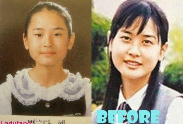 Nữ hoàng dao kéo Lee Da Hae lộ diện với gương mặt khác lạ, dấy lên nghi vấn nghiện dao kéo đến mức biến chứng - Ảnh 5.