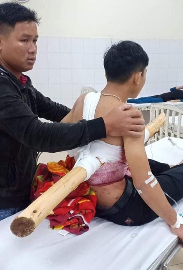 Kinh hoàng nam sinh 16 tuổi chạy xe máy bị cây keo đâm xuyên người - Ảnh 2.