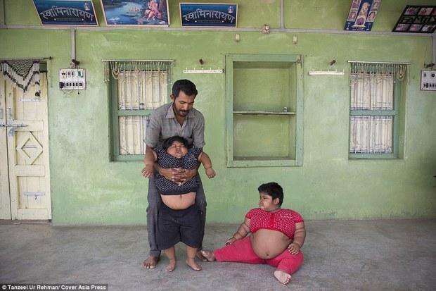 Gia đình nghèo có 3 con bị bệnh béo phì, bố đòi bán thận kiếm tiền cứu chữa từng thu hút sự chú ý của truyền thông thế giới giờ ra sao? - Ảnh 3.