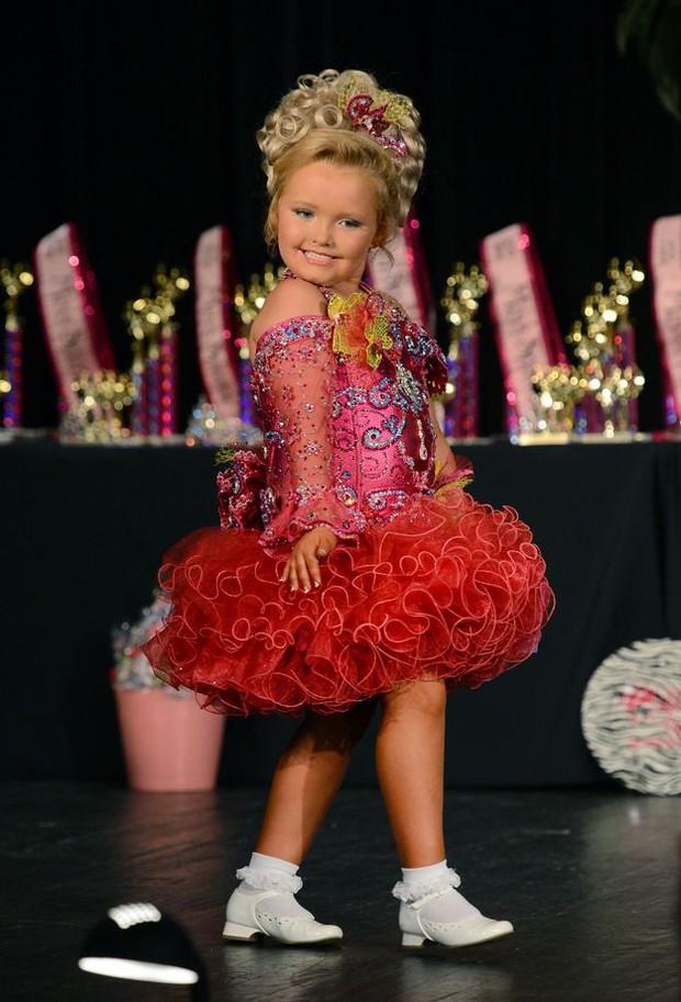 Hoa hậu nhí 6 tuổi nổi đình đám một thời sau 10 năm gây choáng với ngoại hình mới cùng câu chuyện buồn phía sau - Ảnh 1.