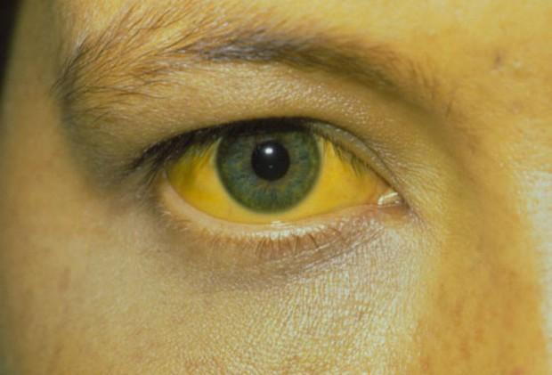 Nếu tế bào ung thư xuất hiện, sẽ có 4 hiện tượng hiện rõ trên làn da ngầm cảnh báo sớm mà bạn nên chú ý - Ảnh 2.