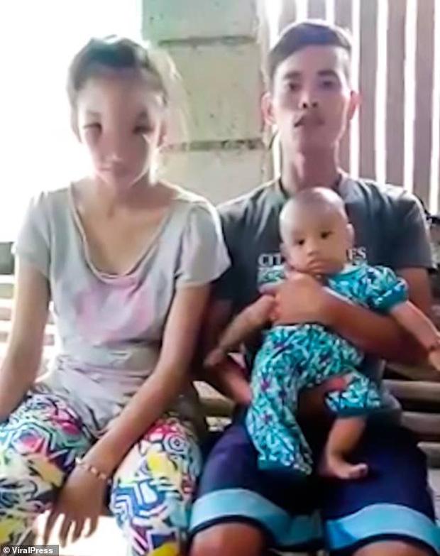 Nặn nốt mụn khó chịu trên mũi, bà mẹ tuổi teen nào ngờ mắc phải chứng bệnh lạ khiến nhan sắc hủy hoại, không ai nhận ra - Ảnh 3.