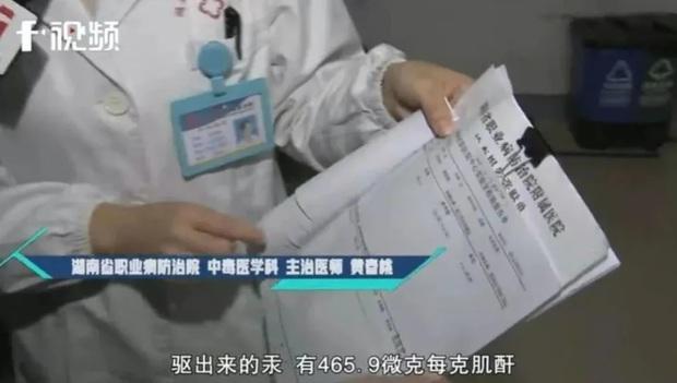 Cô gái 25 tuổi mắc hội chứng thận hư do sử dụng kem làm trắng, xóa vết nám chứa quá nhiều thủy ngân - Ảnh 3.