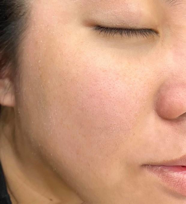 Da đang bong tróc, cô nàng tìm ra loạt sản phẩm hô biến da thành căng mượt, không thấy lỗ chân lông trong cả mùa đông - Ảnh 1.