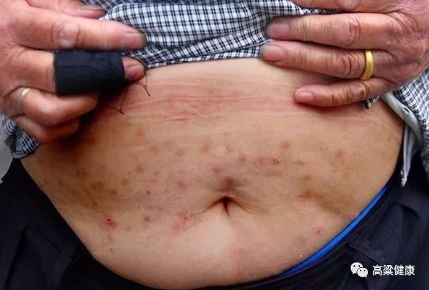 Người đàn ông đi khám giời leo thì phát hiện ung thư dạ dày: Bác sĩ khuyến cáo 2 loại thực phẩm nên ăn ít để tránh tế bào ung thư - Ảnh 1.