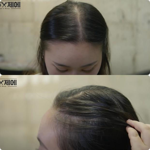 Hairstylist người Hàn bày cách cứu rỗi mái tóc mỏng dính, hói cả mảng: Chị em tự làm ở nhà ngon ơ mà chẳng cần ra tiệm - Ảnh 1.