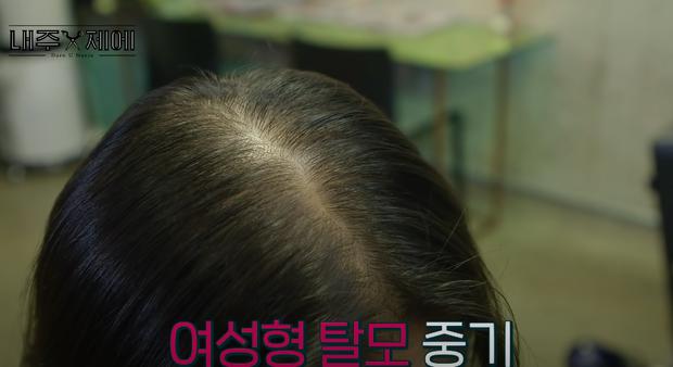 Hairstylist người Hàn bày cách cứu rỗi mái tóc mỏng dính, hói cả mảng: Chị em tự làm ở nhà ngon ơ mà chẳng cần ra tiệm - Ảnh 2.
