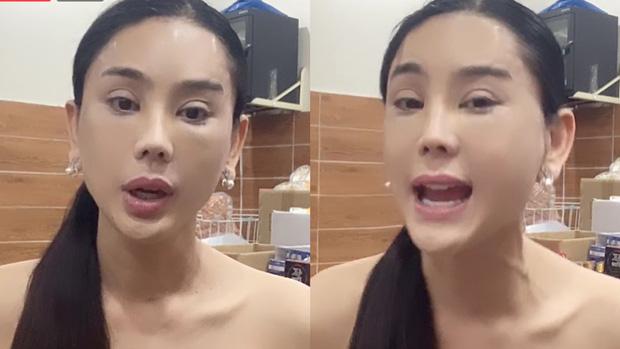 Lâm Khánh Chi gây hoang mang khi xuất hiện với gương mặt đơ cứng và mí mắt sưng to khác lạ - Ảnh 4.